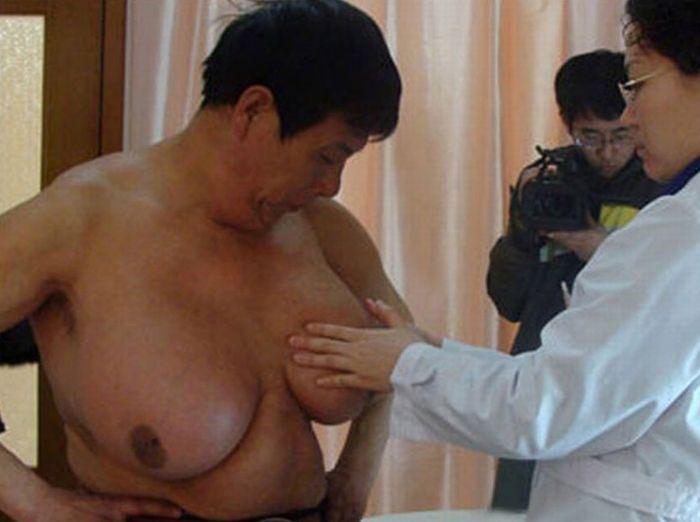 Китайские хирурги провели операцию по удалению мужчине гигантских молочных