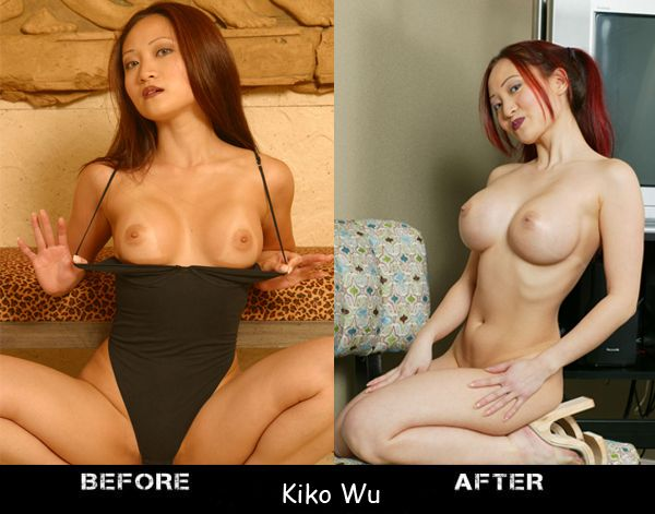 Porn stars before and after breast augmentation - 02