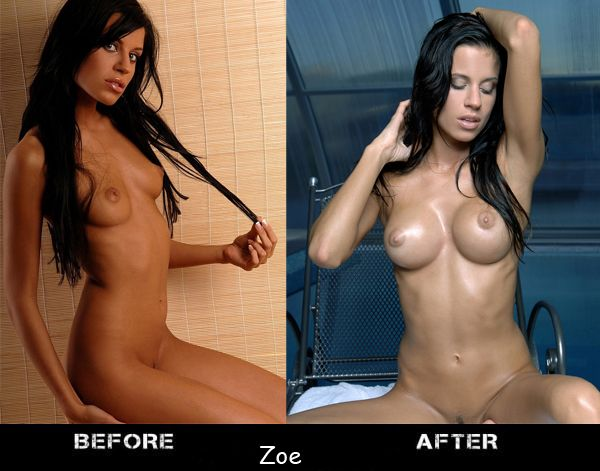 Porn stars before and after breast augmentation - 07