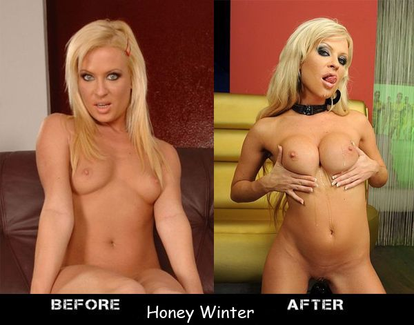 Porn stars before and after breast augmentation - 08