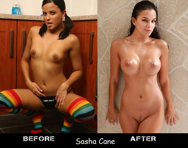 Porn stars before and after breast augmentation - 10