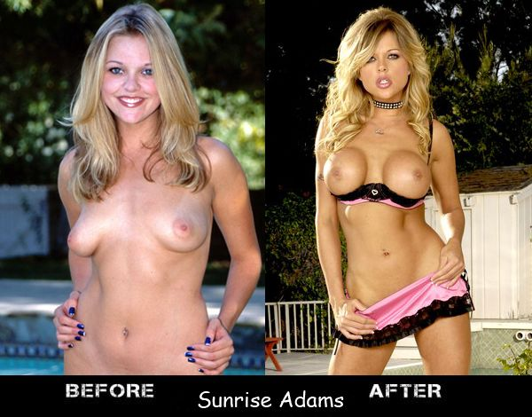 Porn stars before and after breast augmentation - 12
