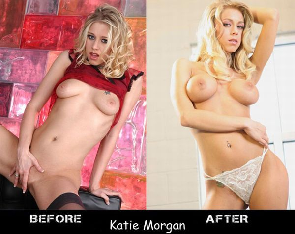 Porn stars before and after breast augmentation - 14