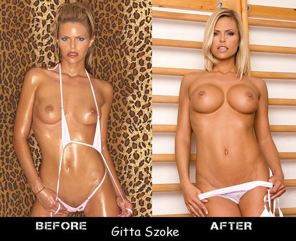 Porn stars before and after breast augmentation - 16