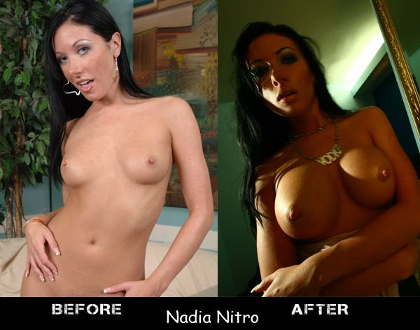 Porn stars before and after breast augmentation - 17