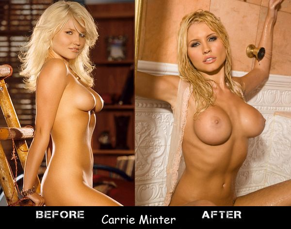 Porn stars before and after breast augmentation - 19