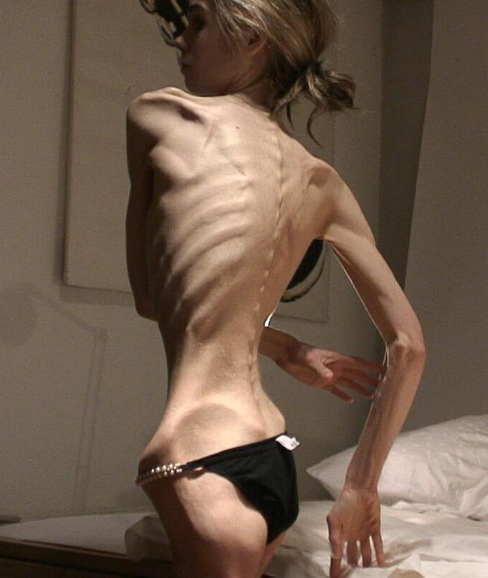 Anorexic white girl naked