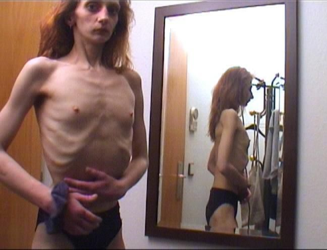 Anorexia - beauty that scares - 04