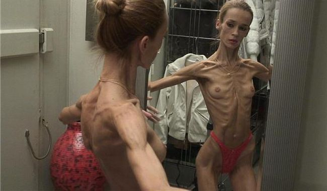 Anorexia - beauty that scares - 07