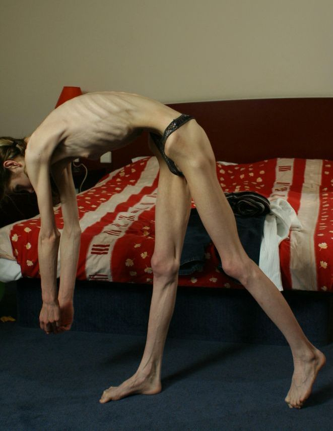 Anorexia - beauty that scares - 21