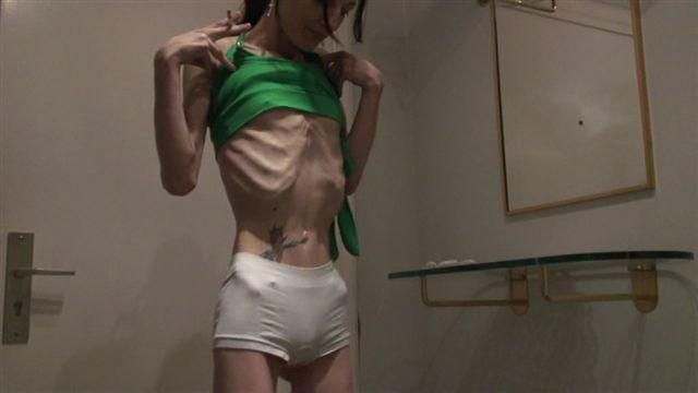 Anorexia - beauty that scares - 24