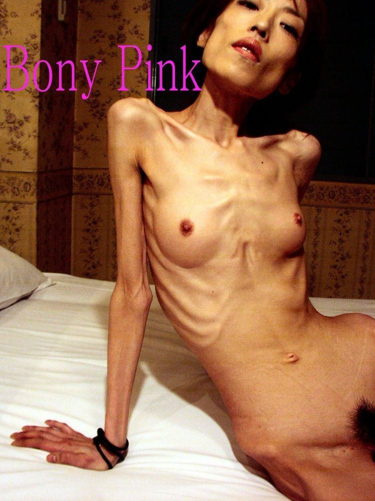 Anorexia - beauty that scares - 27