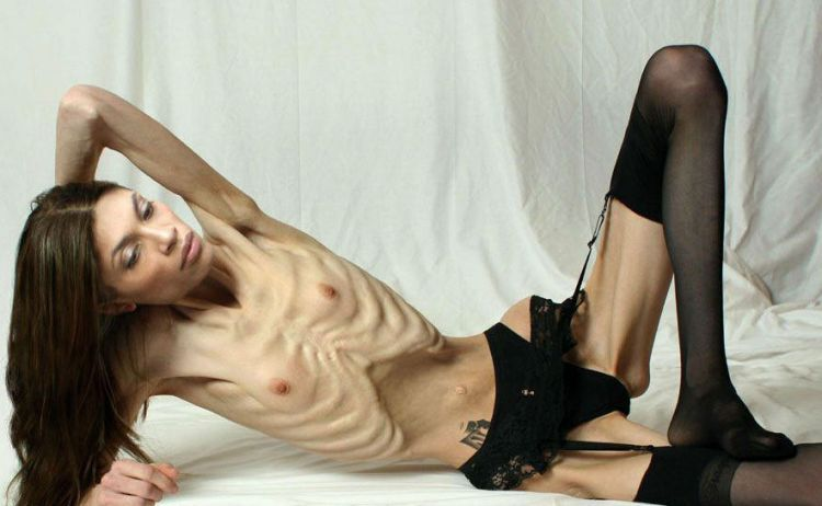 Anorexia - beauty that scares - 29