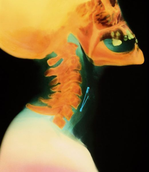 A selection of the most bizarre X-ray images - 00